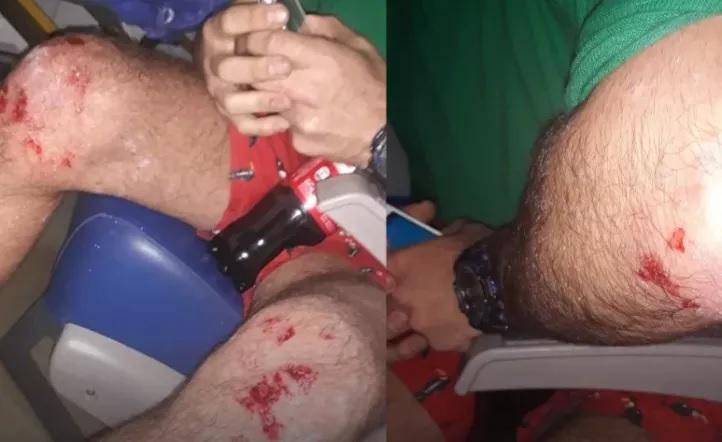 Tremendo ataque homofóbico en Villa Urquiza