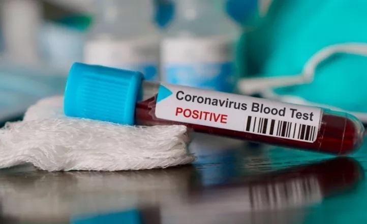 El viceministro de Salud de la Provincia contó como será el operativo de vacunación contra el Covid-19