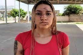 Le desfiguraron el rostro a una joven de 19 años en una fiesta clandestina en Córdoba